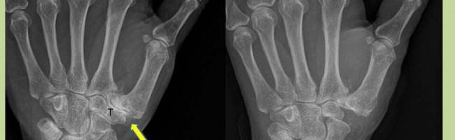 Handchirurgie bei Arthrose des Daumensattelgelenksarthrose